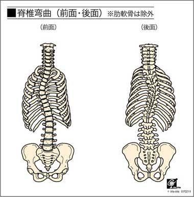 歪み 肋骨